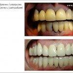 Protetyka stomatologiczna