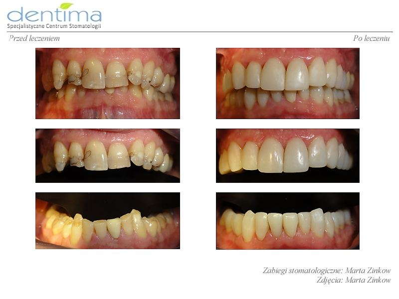 Dentima-metamorfozy-ml-1
