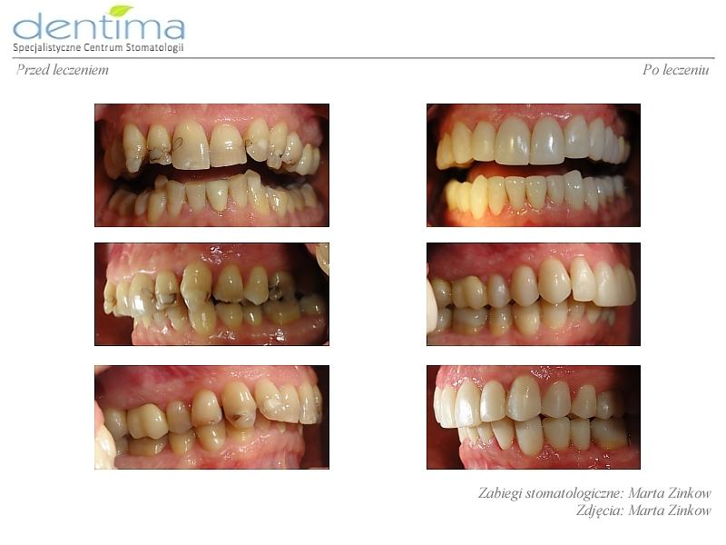 Dentima-metamorfozy-ml-2